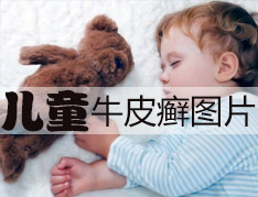 儿童患上牛皮癣常见的规律特征