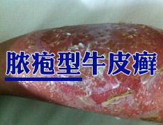 脓疱型牛皮癣包括哪些类型
