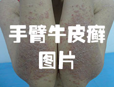 手指患上牛皮癣的症状表现?