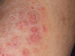 牛皮癣患者的伤口该怎么处理
