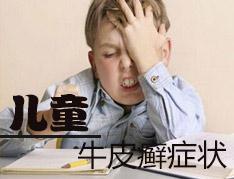儿童患有牛皮癣的症状是什么
