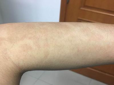 皮肤长牛皮癣都会有哪些症状