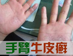 手部牛皮癣患者需要注意三点