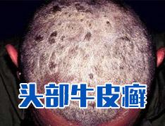 头部牛皮癣有哪些最好的治疗方法